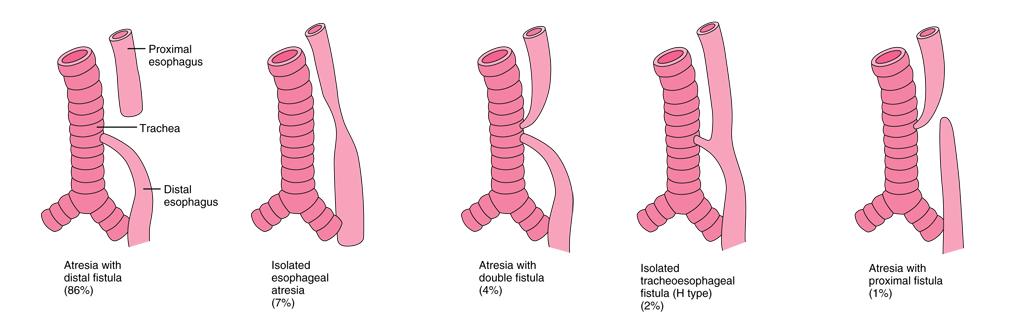 5 tipi di atresia esofagea